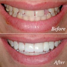 dental bridge everett wa