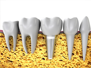 dental implants everett wa