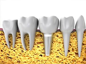 dental implants everett wa