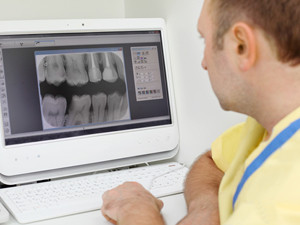 dental xrays everett wa