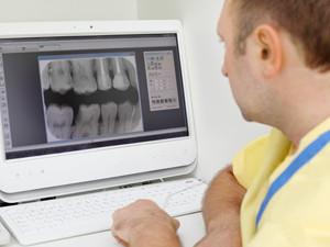 dental xrays everett wa